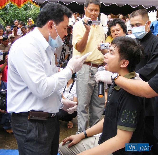 Hình ảnh ông Võ Hoàng Yên chữa bệnh cho các bệnh nhân câm điếc